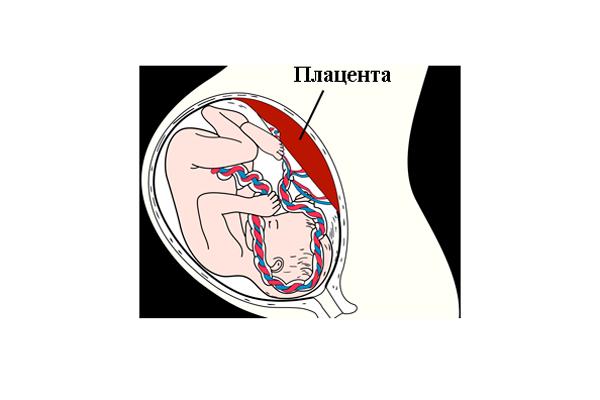 Замирание беременности в следствии фетоплацентарной недостаточности