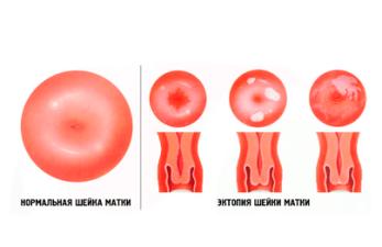 Эктопия шейки матки: причины и лечение