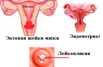 Фоновые и предраковые заболевания шейки матки: чего стоит боятся?