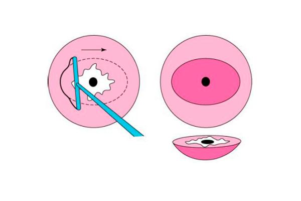 Конизация для лечения предраковых заболеваний шейки матки
