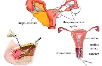 Как проверяют проходимость маточных труб: лучшие способы диагностики