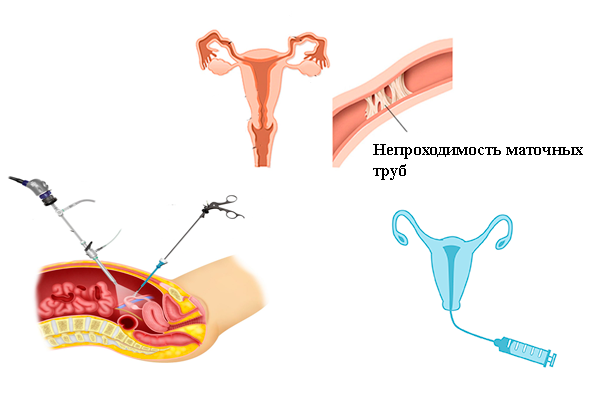Методы диагностики проходимости маточных труб