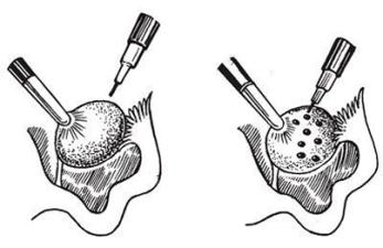Каутеризация яичников - виды и последствия для организма женщины