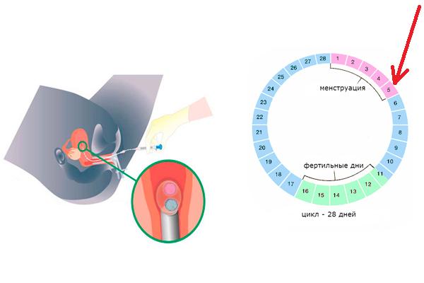 День для переноса эмбрионов