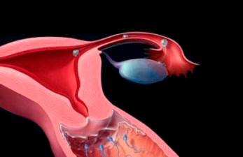 Шеечный фактор бесплодия: симптомы и лечение