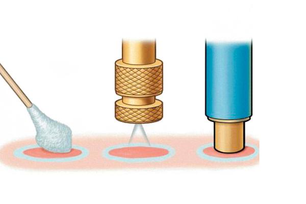Криодиструкция для лечения эрозии шейки матки