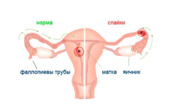 Спайки на яичниках: симптомы и лечение