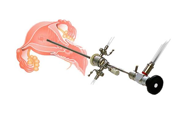 Диагностирование спаечной болезни с помощью гистеросальпингографии