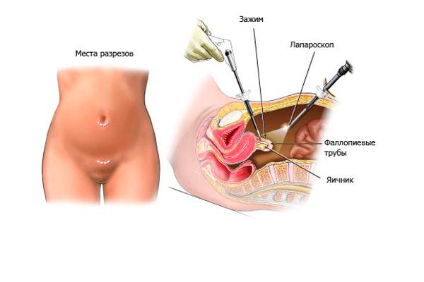 Лапароскопическая операция по удалению спаек на яичниках