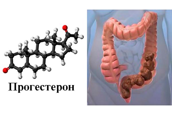 Образование запора в следствии повышенной выработке прогестерона