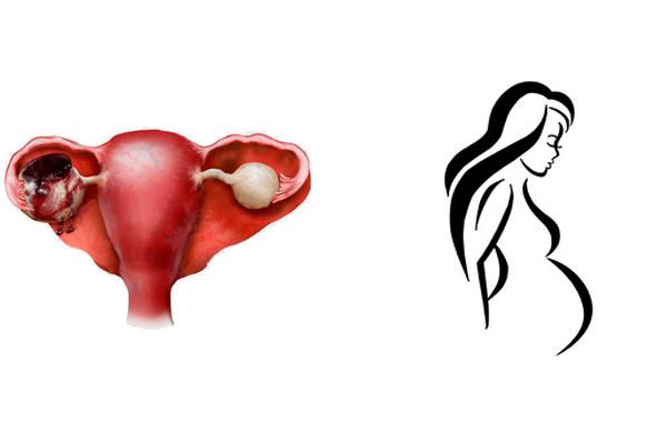 Беременность после перенесенной апоплексии яичника