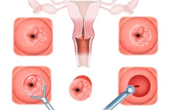 Диатермокоагуляция для лечения эрозии шейки матки