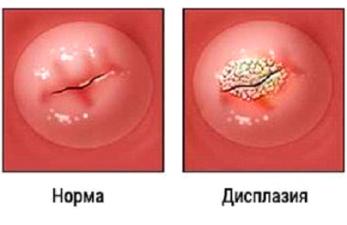 Дисплазия шейки матки: симптомы и лечение
