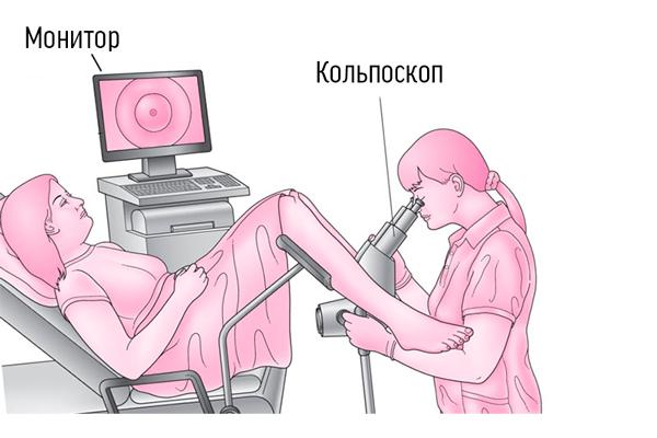 Кольпоскопия для диагностирования дисплазии шейки матки