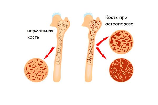 Остеопороз при гипофункции яичников