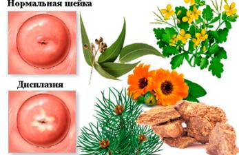 Лечение дисплазии шейки матки народными средствами