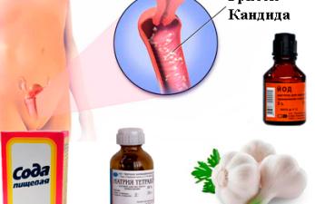 Лечение молочницы у женщин народными средствами – только лучшие рецепты