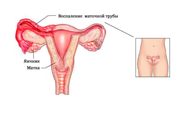 Появление полипа шейки матки из-за аднексита