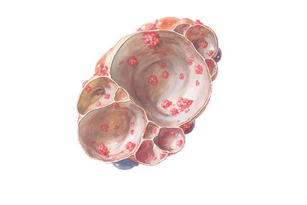 Папиллярная цистаденома яичника
