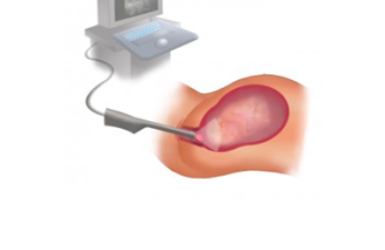 Как проходит и когда необходима процедура фолликулометрии