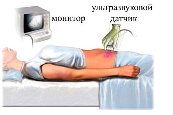 Фолликулометрия трансабдоминальным способом