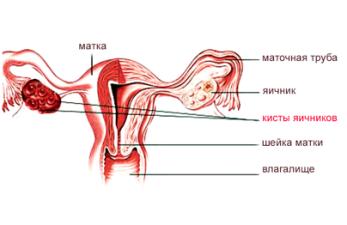 Кистозное изменение яичников: причины и лечение заболевания