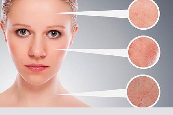 Угревая сыпь при кистозном изменении яичников