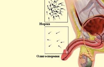 Олигоспермия у мужчин - симптомы и лечение