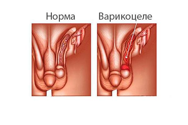Олигоспермия из-за заболевания варикоцеле