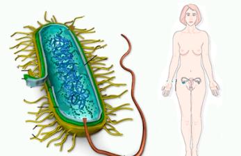 Уреаплазма у женщин: симптомы и лечениеопасной инфекции