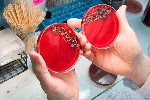Биологический посев для обнаружения уреаплазмы у женщины