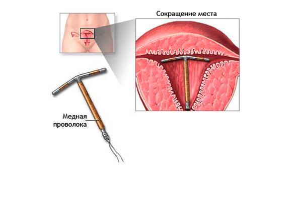 Заражение вирусом уреаплазмой в процессе установления внутриматочной спирали