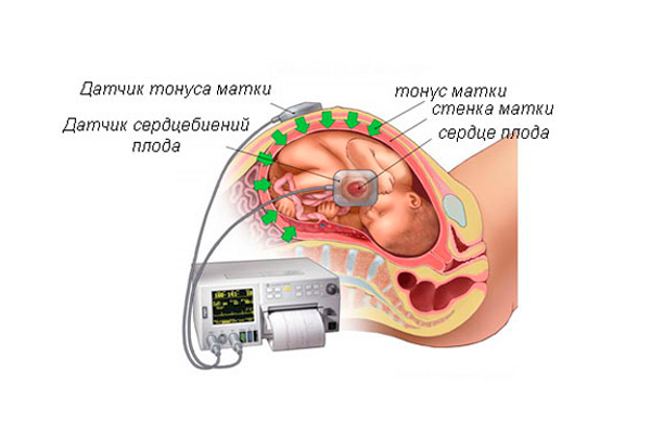 Тонус матки в следствии грибка Canadida при беременности