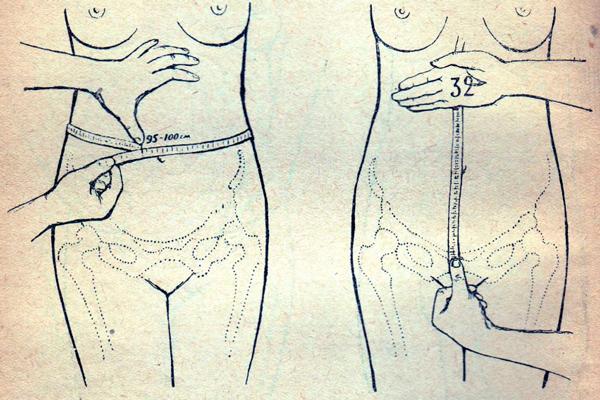 Измерение окружности живота и высоты стояния дна матки на 20-й недели беременности