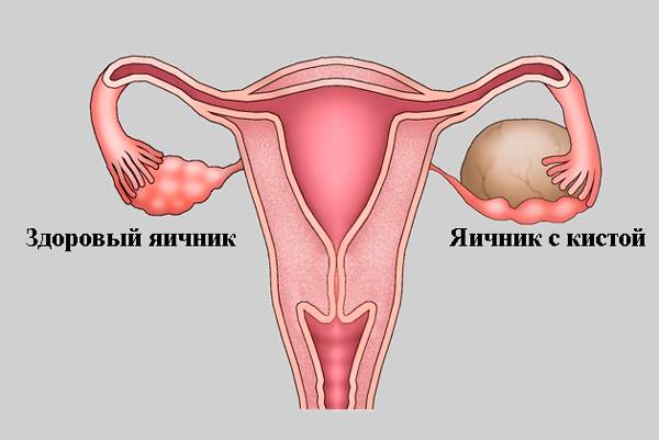 Формирование доминантного фолликула в левом яичнике из-за кистозного воспаления в правом
