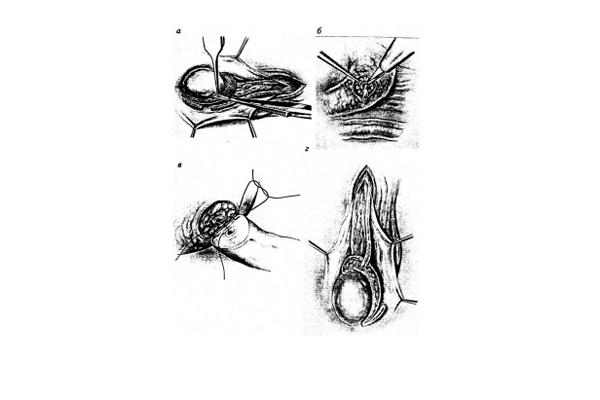 Операция ВАЗОЭПИДИДИМОАНАСТОЗМОЗ для лечения варикоцеле