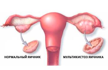 Мультикистоз яичников: симптомы и лечение опасного заболевания
