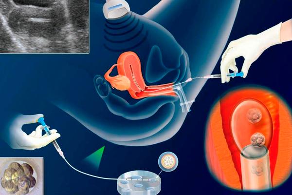 Процесс переноса двух эмбрионов при ЭКО