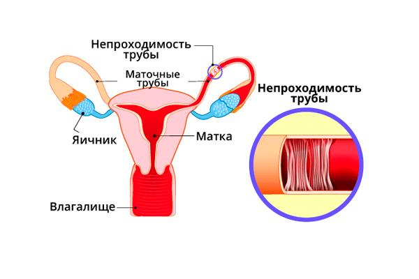 Физиопроцедуры при бесплодии у женщин