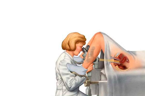 Кольпоскопия для диагностирования генитального герпеса