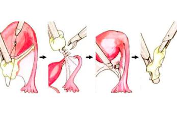 Резекция яичника: показания и последствия сложной операции для организма женщины