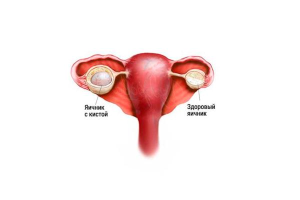 Проведение резекции яичника при наличии кисты