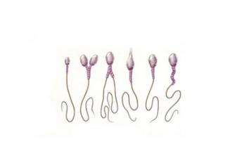 Астенотератозооспермия: причины развития и лечение мужской патологии