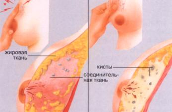 Гормональная мастопатия: причины развития и варианты лечения заболевания
