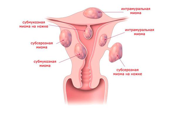 Укорачивание менструального цикла из-за миомы матки