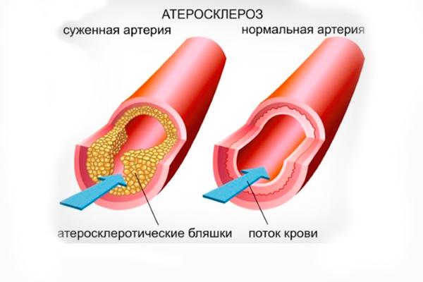 Атеросклероз, как одна из причин тромбофилии при беременности