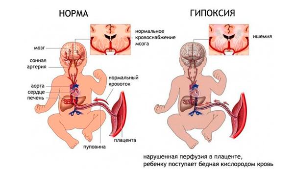 Возможная гипоксия плода в следствии тромбофилии