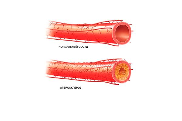Возрастной андрогенный дефицит у мужчин в следствии атеросклероза сосудов
