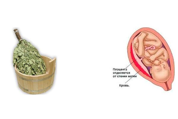 Возможная отслойка плаценты в следствии похода беременной в баню