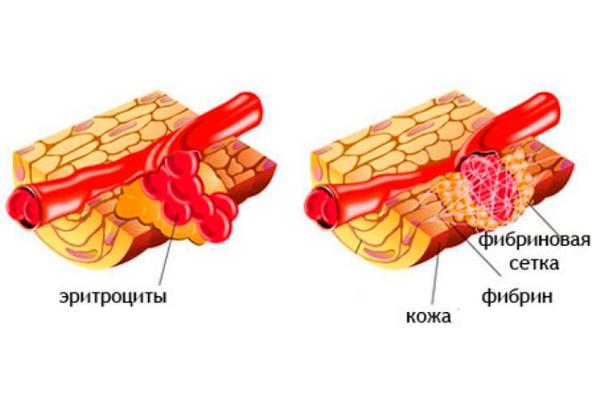 Процесс регенерации под действием фибриногена